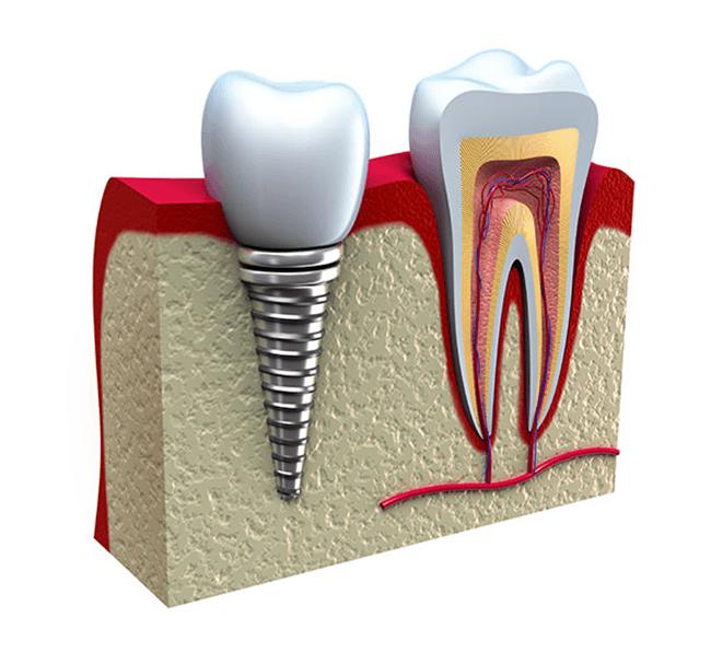 Implantologia - Studio Dentistico San Valentino