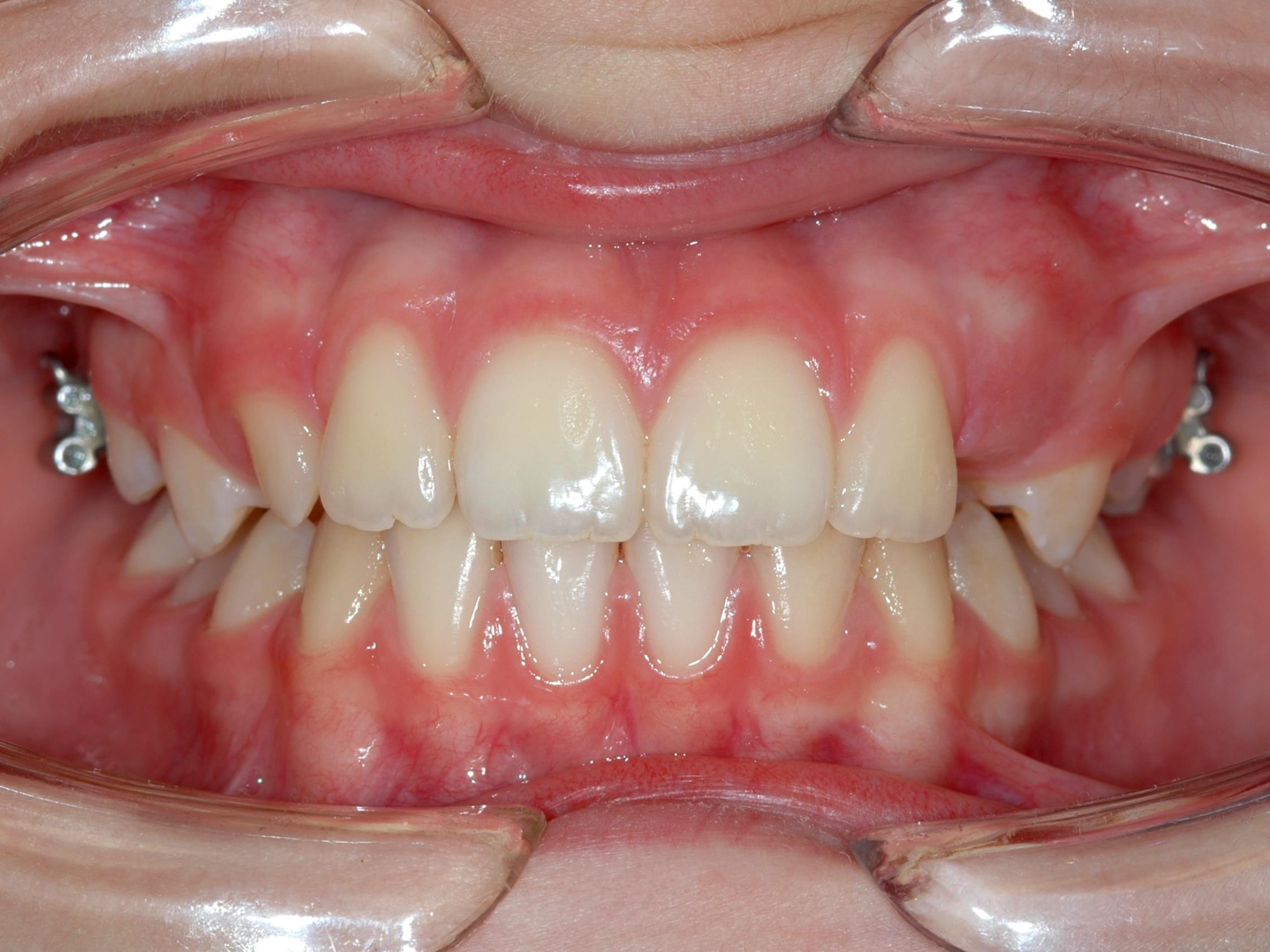 Ortodonzia - Studio Dentistico San Valentino